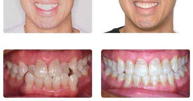 Белые брекеты фото до и после