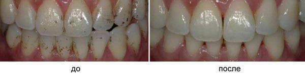 дентикюр фото до и после
