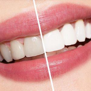 Дентикюр в стоматологии
