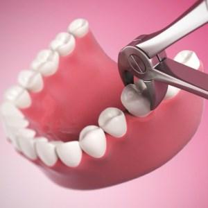 Где удалить зуб в воскресенье