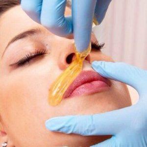 Эпиляция волос над верхней губой