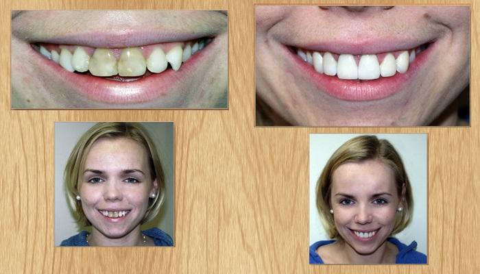виниры на зубы передние
