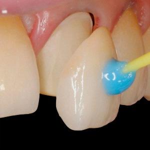Как устанавливают виниры на зубы передние