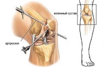 Артроскопическая санация суставов