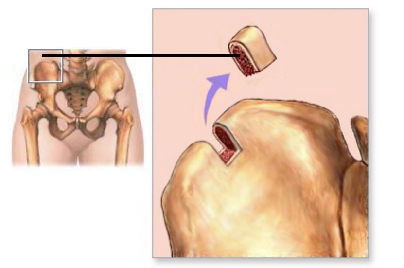 Аутопластика кости