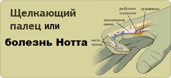 Стенозирующий лигаментит пальца