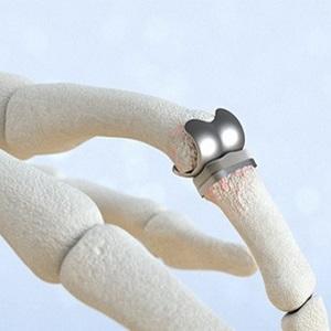Эндопротезирование суставов пальцев