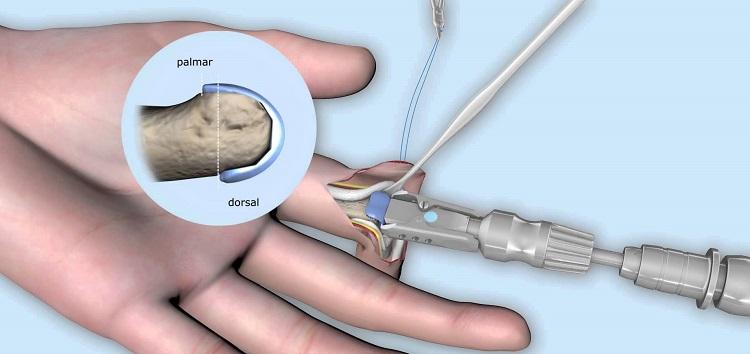 Эндопротезирование суставов пальцев рук