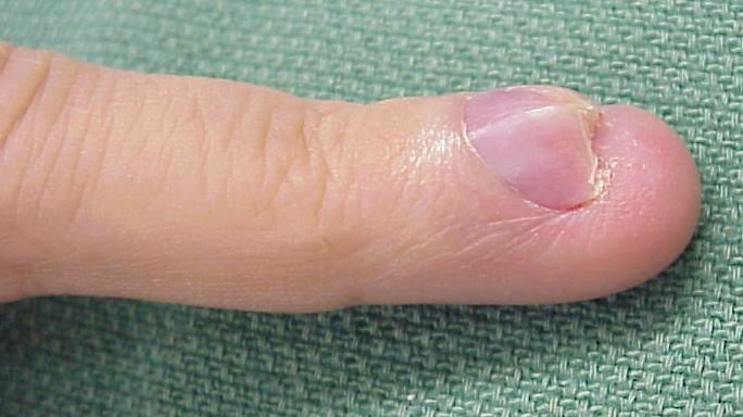 Гломусная опухоль ногтевой фаланги пальца