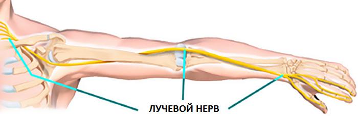 поражение лучевого нерва руки