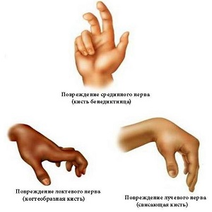 Лучевой нерв руки лечение и восстановление