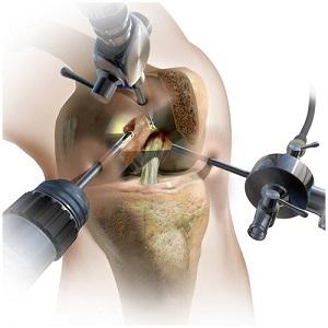 санация коленного сустава