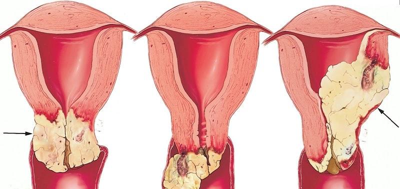Лечение патологии шейки матки