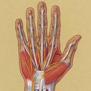 Восстановление сухожилий сгибателей пальцев