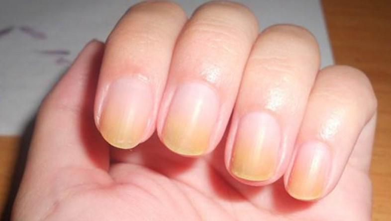 Цвет ногтя
