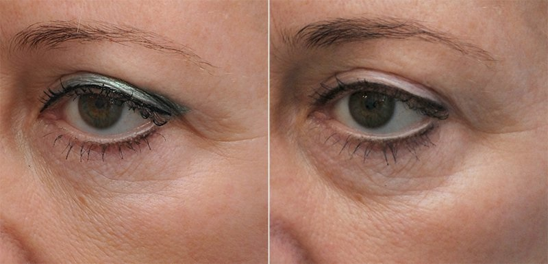 Пигментация вокруг глаз как избавиться