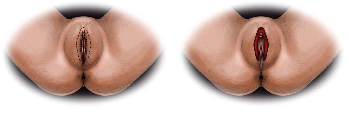 Гипертрофия больших половых губ