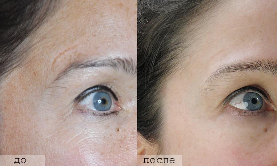 мезороллер фото до и после