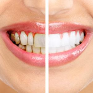 Отбеливание зубов OPALESCENS