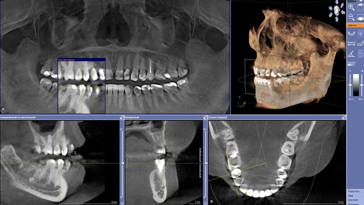 Компьютерная томография зубов в Москве