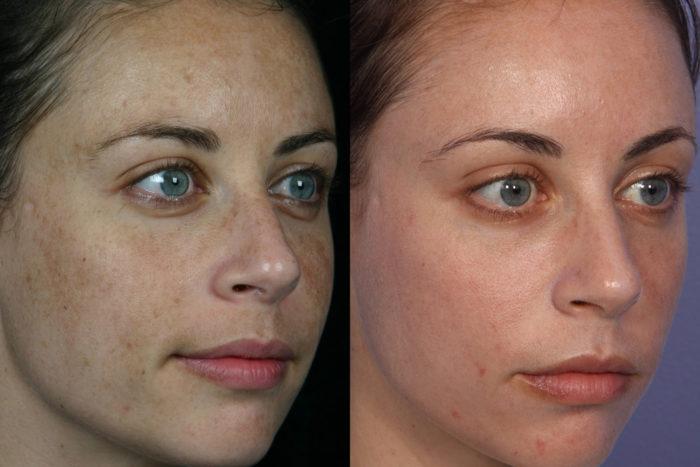 Лазерная омоложение лица фото до и после