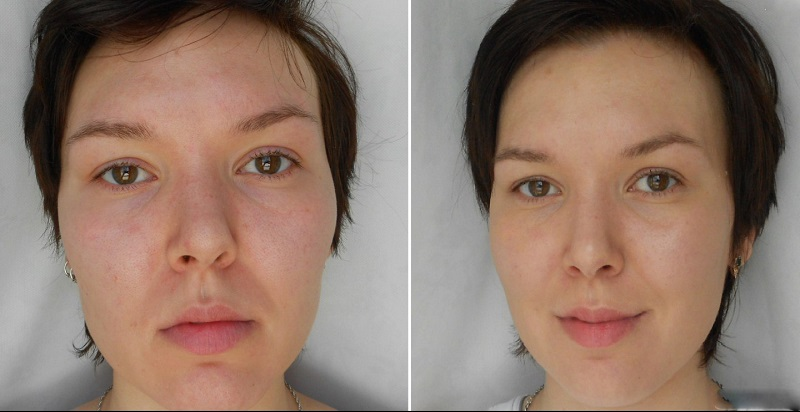 Биовитаризация фото до и после