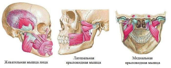 лечение гипертонуса жевательных мышц