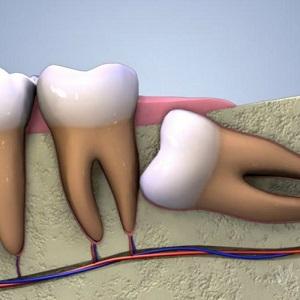 Удаление зубов мудрости ультразвуком