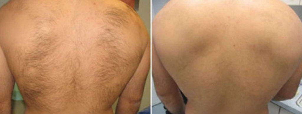 эпиляция спины воском у мужчин