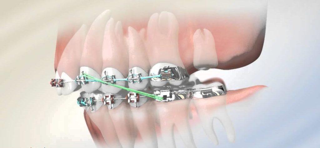Удаление зубов мудрости перед установкой брекетов