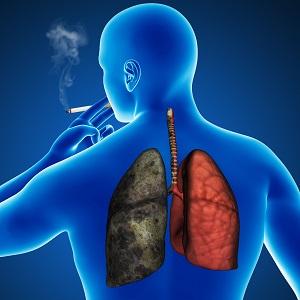 ХОБЛ заболевание легких