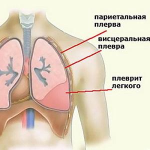 плеврит легких