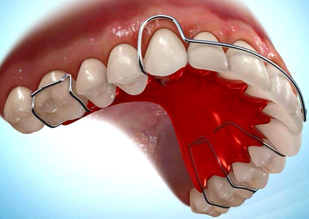 Ортодонтические пластинки несъемные