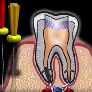 Удаление зубов при хроническом периодонтите