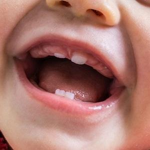средствf при прорезывании зубов