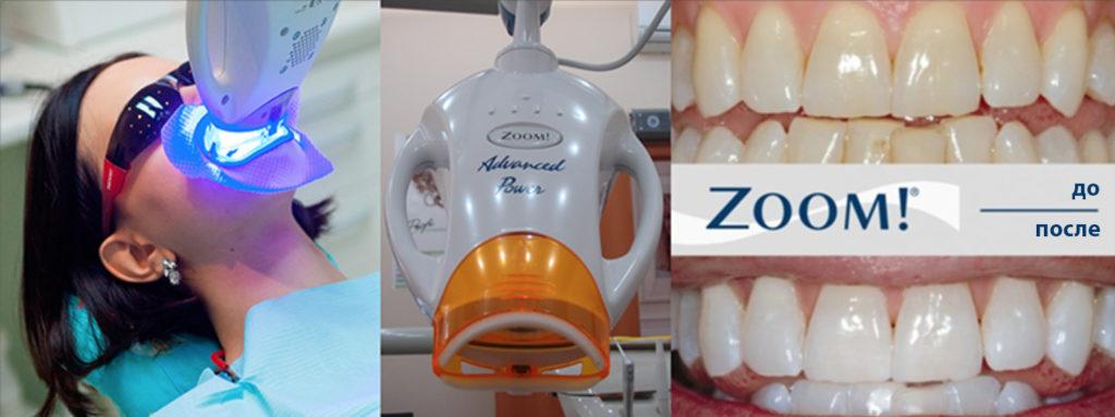 ZOOM 3 фото до и после