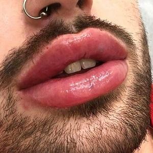 Увеличение губ мужчинам в Москве