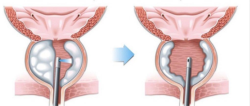 как проходит процедура лечения простатита лазером