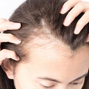 Применение фитотерапии в лечении выпадения волос