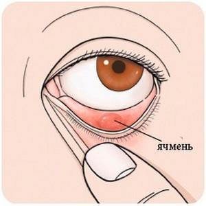 Лечение ячменя в домашних условиях слюной