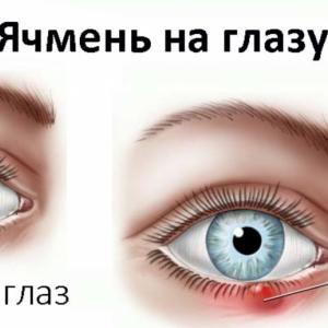 Компрессы от ячменя на глазу